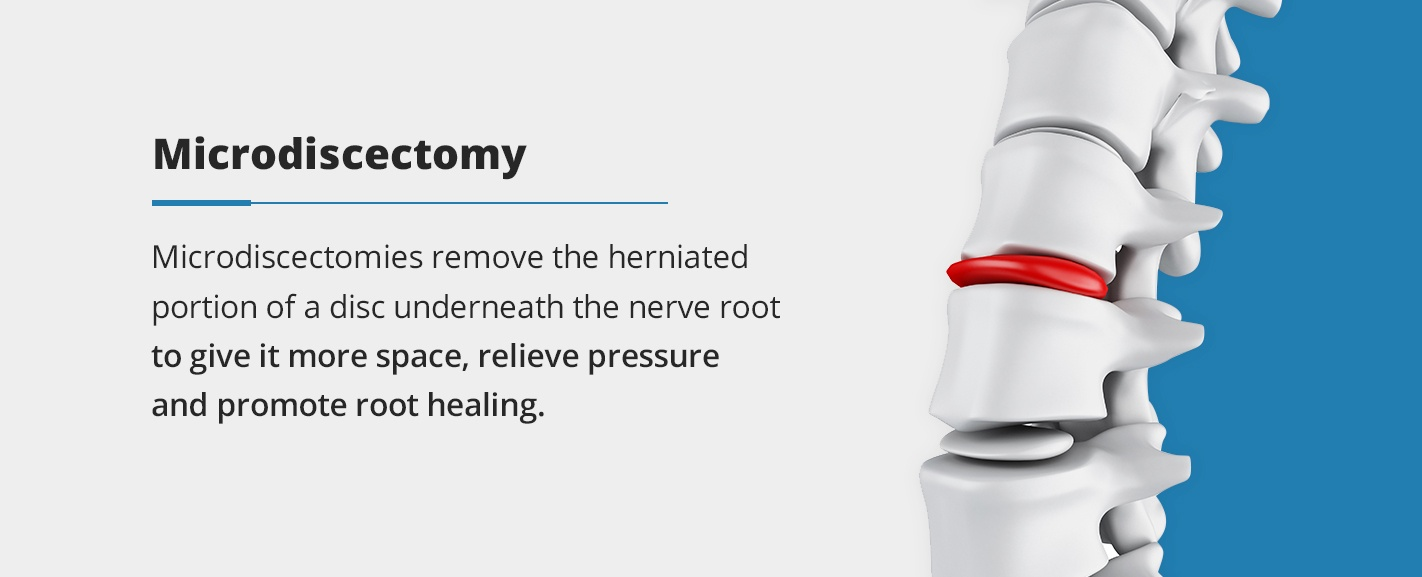 microdiscectomies remove the herniated portion of a disc underneath the nerve root to give it more space, relieve pressure and promote root healing