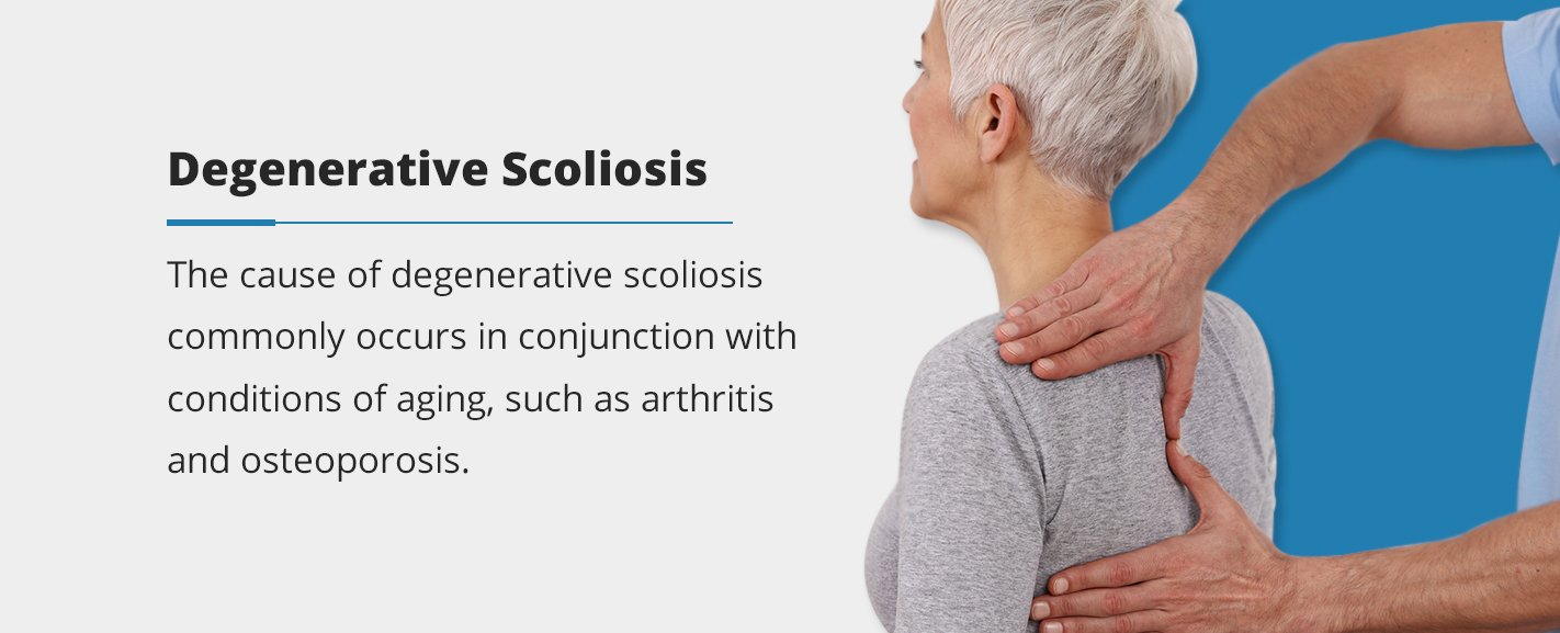 the cause of degenerative scoliosis