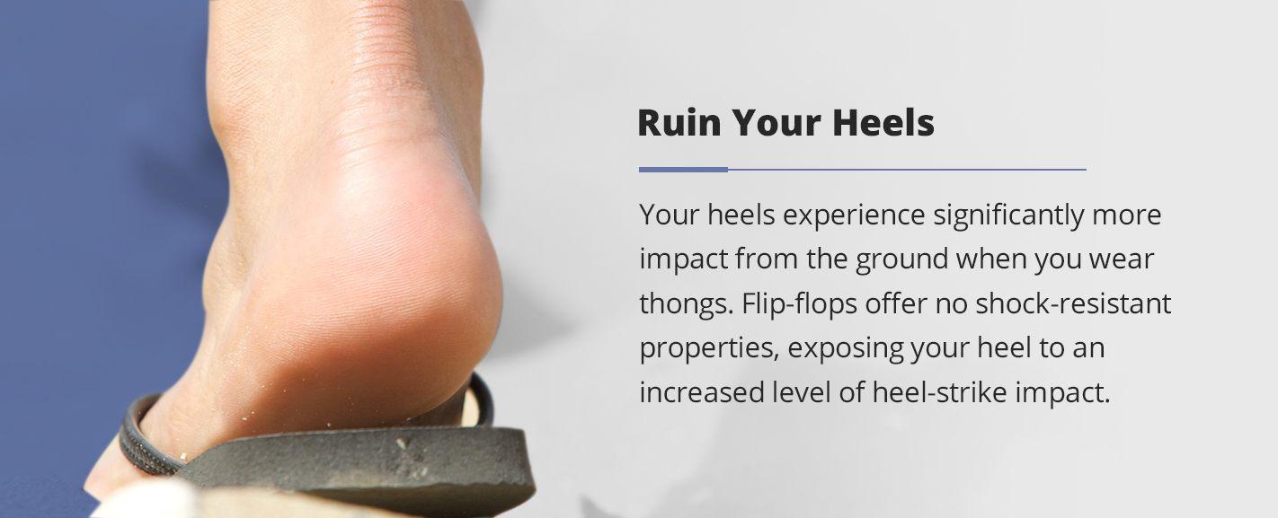 how flip flops will ruin your heels