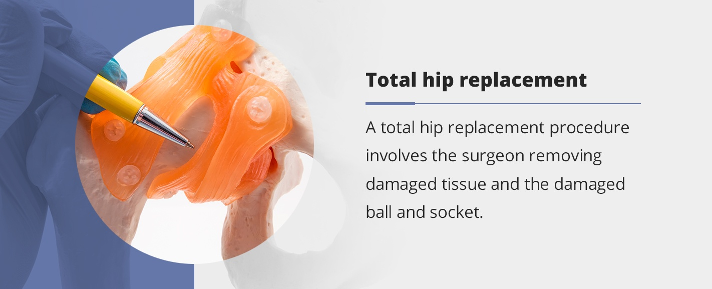 total hip replacement information