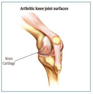 Arthrtic Knee