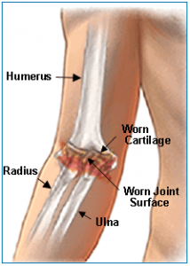 arthritic elbow joint diagram