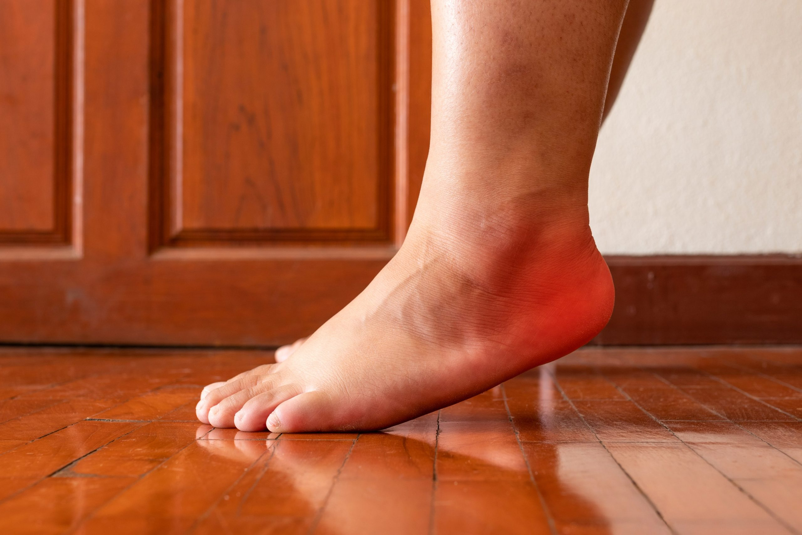 How You Can Treat Plantar Fasciitis at Home
