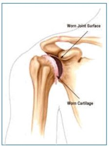 arthritic shoulder