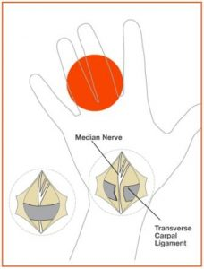 carpal tunnel pain diagram