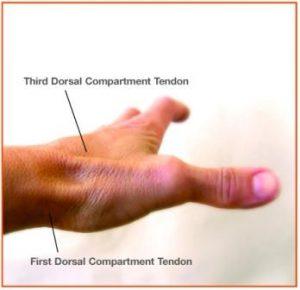dorsal compartment tendons
