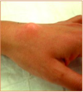 Ganglion cyst top side (dorsum) wrist