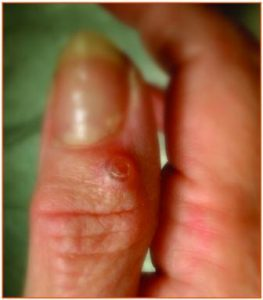 Ganglion end joint of finger (mucous cyst)