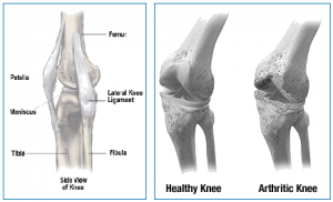 healthy knee vs arthritic knee