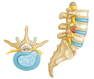 Herniated disk side view and cross-section