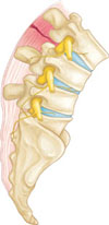 lumbar-ligament-tear