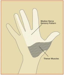 carpal tunnel hand diagram
