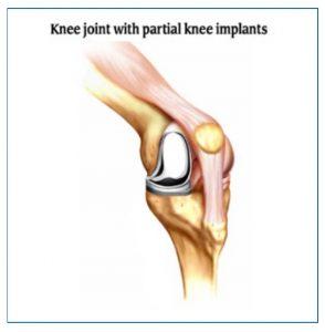 partial knee implants
