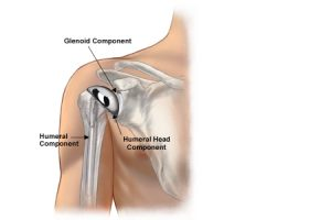 shoulder-implants
