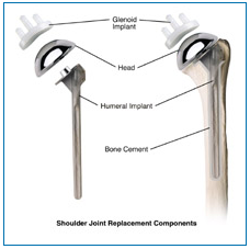 shoulder joint replacement components
