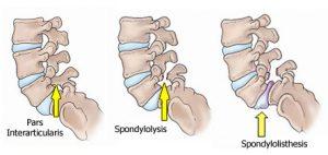spondylolysis-spondylolisthesis-diagram