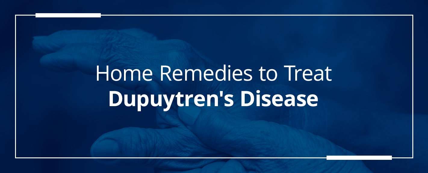 Home remedies to treat dupuytrens disease