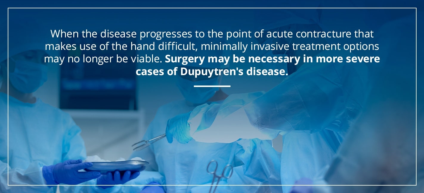 surgery may be necessary in more severe cases of dupuytren's disease