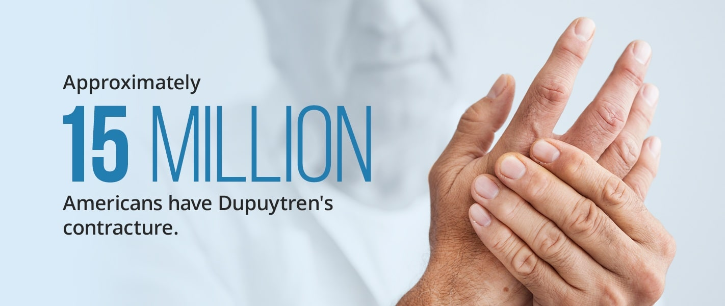 approximately 15 million americans have dupuytren's contracture