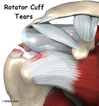 Rotator Cuff Disorders: The Facts