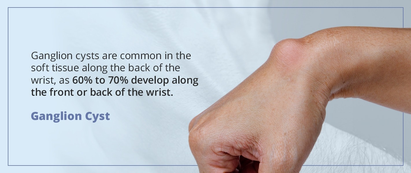 ganglion cysts are common in the soft tissue along the back of the wrist
