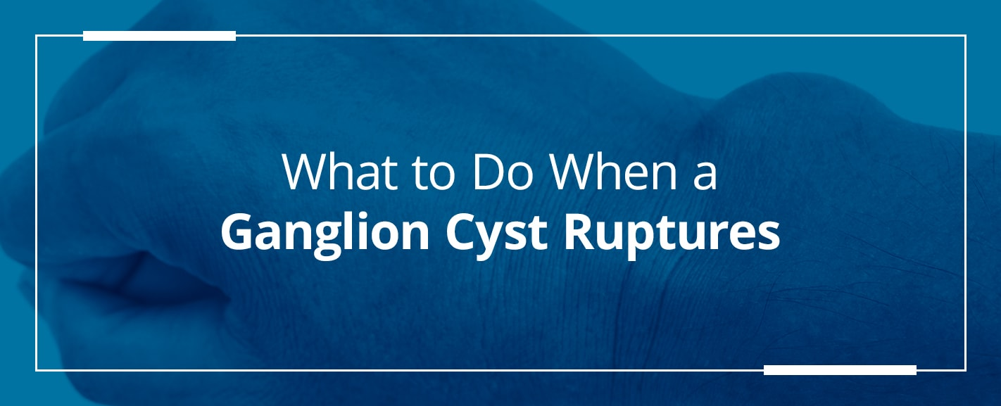 what to do when a ganglion cyst ruptures