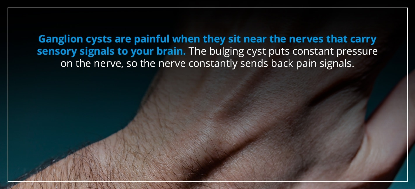 ganglion cysts are painful when they sit near the nerves that carry sensory signals to your brain