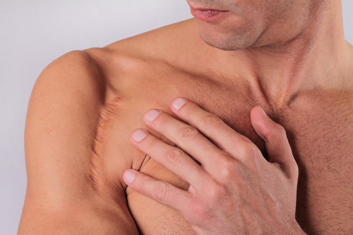 man recovering from rotator cuff augmentation
