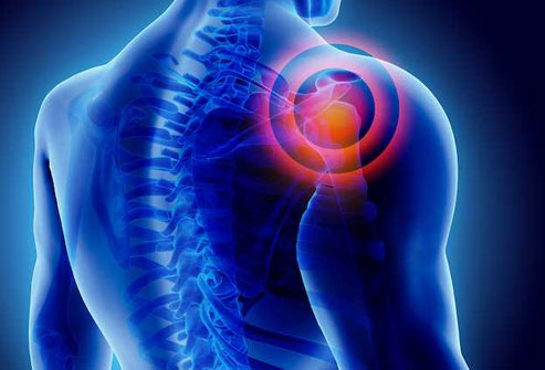 frozen shoulder rotator cuff pain